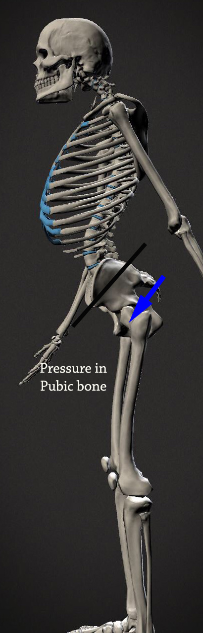 apt-pressure-in-pubic-bone